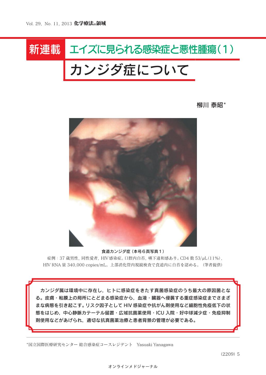 症 食道 カンジダ