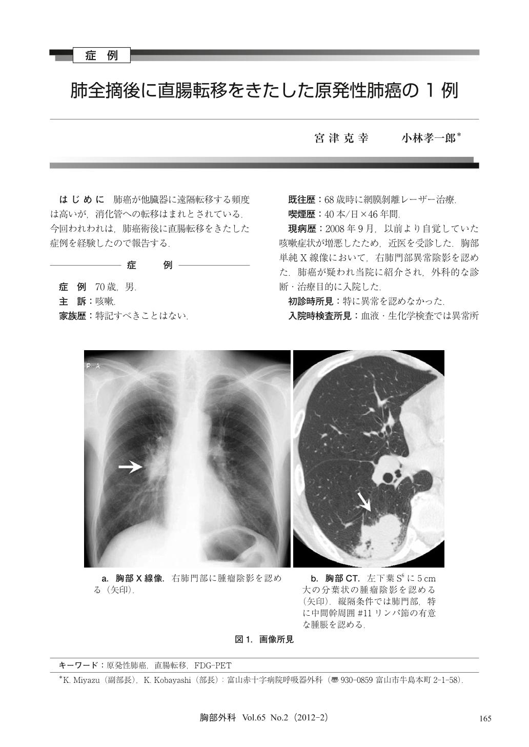 性 肺癌 原発