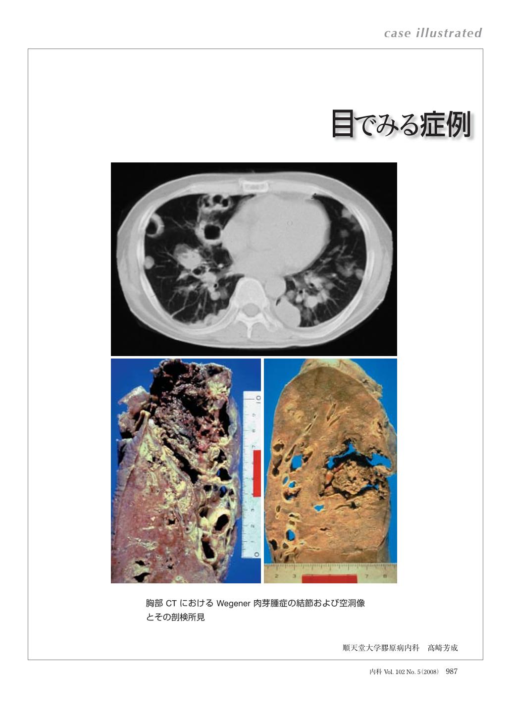 ウェジナー 肉芽 腫 症