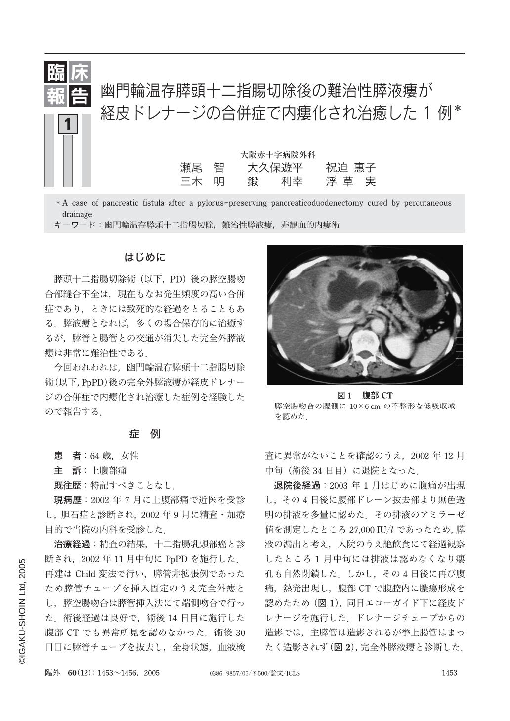 幽門輪温存膵頭十二指腸切除後の難治性膵液瘻が経皮 ...