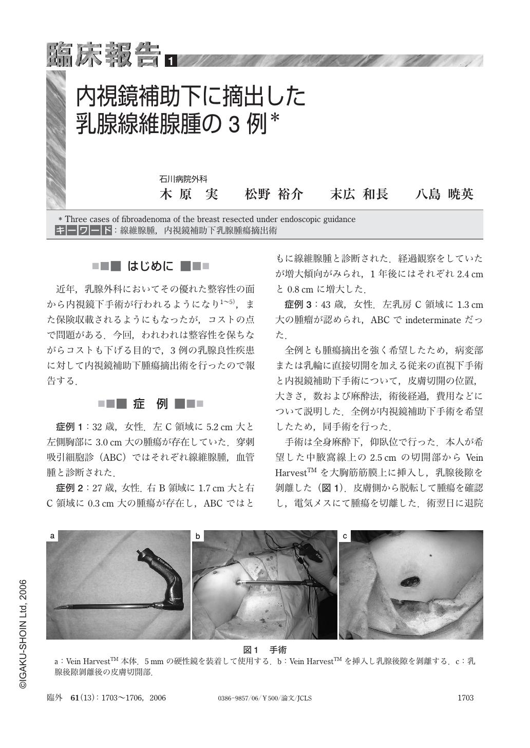 線維 腺腫 乳腺