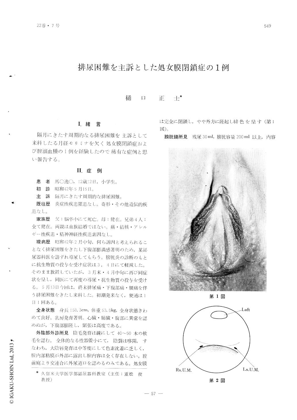 強靭 症 処女膜