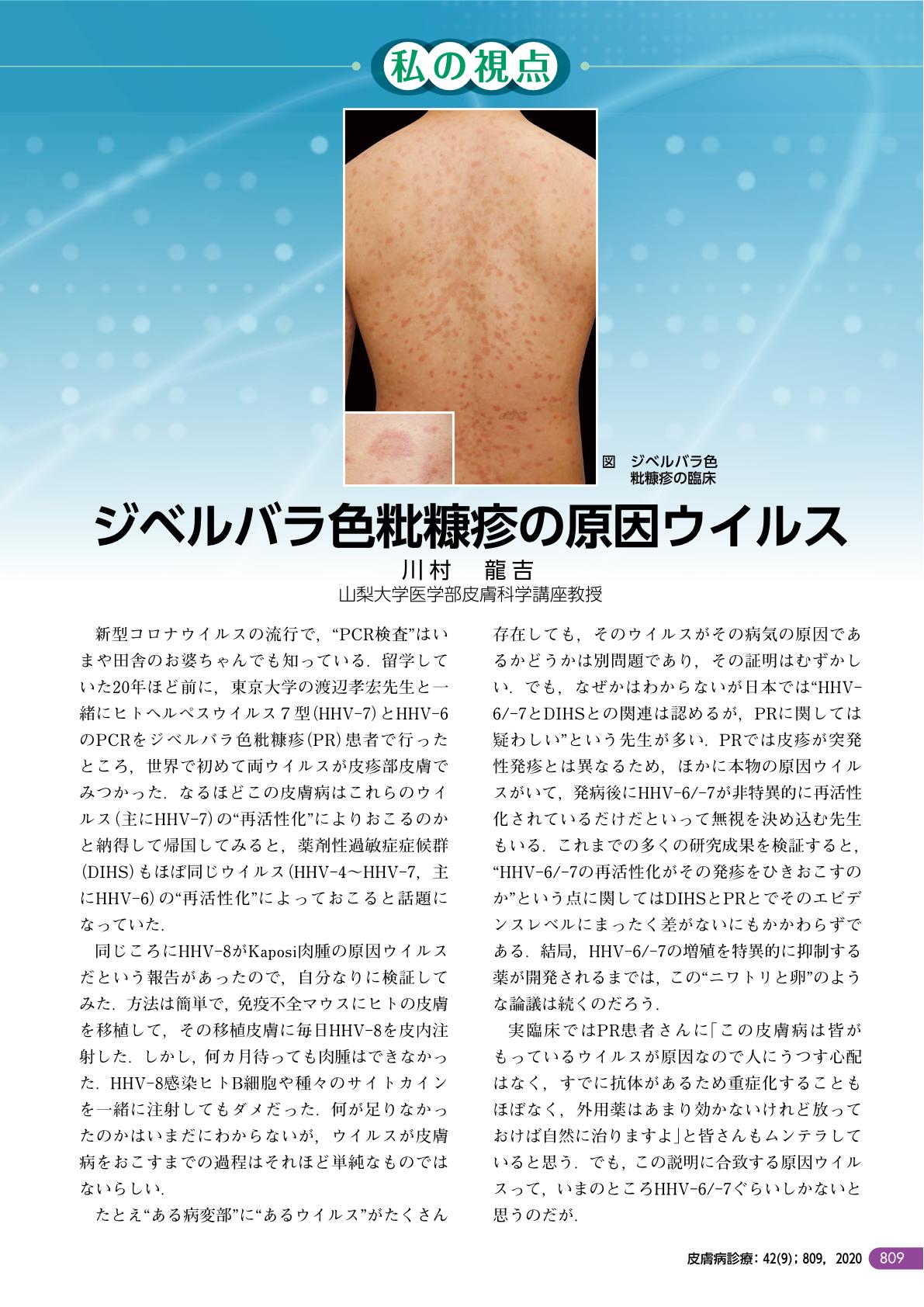 粃 糠 薔薇色 疹 ジベル ジベルバラ色粃糠疹、治りません。